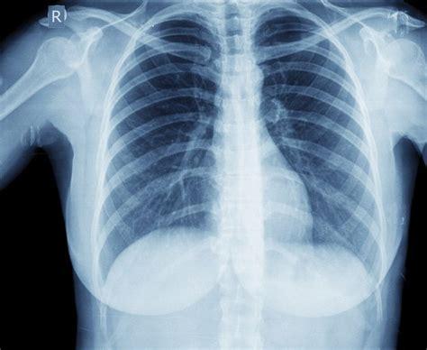 pug pneumonia what are pneumonia complications livestrong