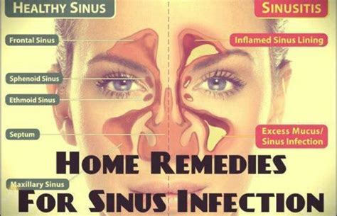 sinus infection home remedies and remedies on