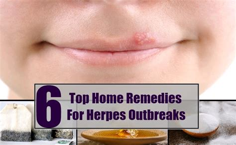 top 6 home remedies for herpes outbreaks