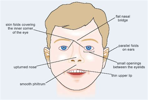 pattern classification for finding facial growth abnormalities alcohol and human health 1 5 fetal alcohol syndrome