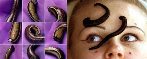leech facial treatment woman s face reattached with the help of 358 leeches the
