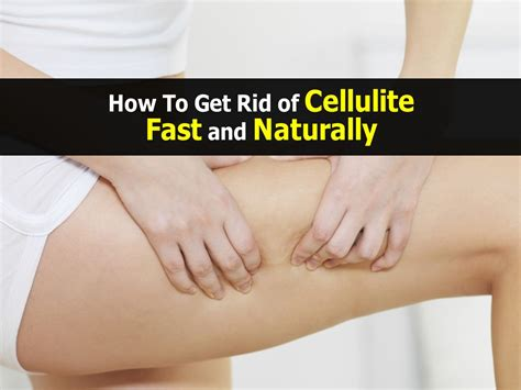 Getting Rid Of Cellulite by How To Get Rid Of Cellulite Fast And Naturally