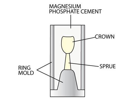 applications of pattern in casting dental applications grecianmagnesite