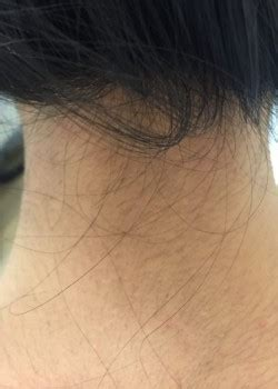 ditch the neck hair laser hair removal for plastic back of neck hair removal patient 0339 before and after gallery
