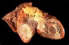 myocardial infarction  aortic aneurysm   flashcards