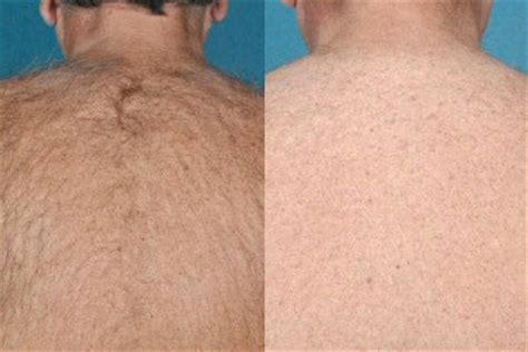 epilation pubis hair removal brussels kinesthetik