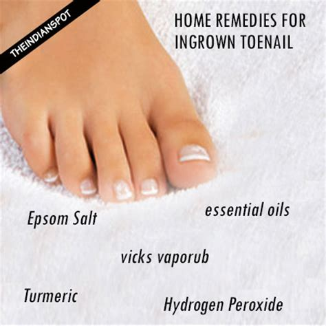 10 top home remedies for ingrown toenail that really work