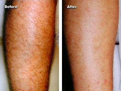 tattoo cover up keratosis pilaris how to cover up acne scars on arms howsto co