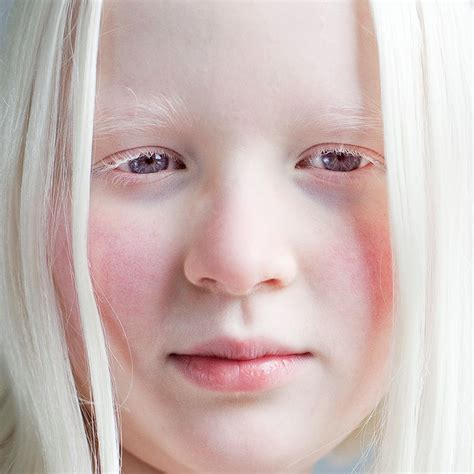 what color do albinos albinism health articles for healthy living