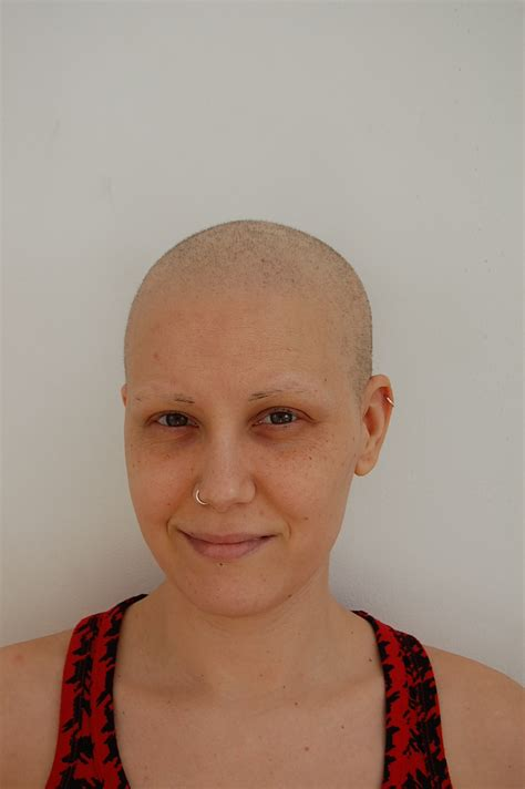 pictures of hair growth after chemo weeks 3 4 and 5 hair growth after chemo