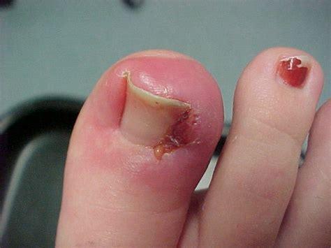 treating an infected ingrown toenail infobarrel ingrown toenails richard m allen d p m