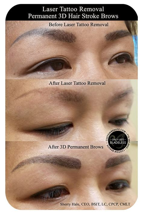 remove eyebrow tattoo permanent brows in amherst buffalo and western new york