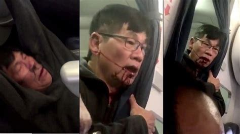 David Dao Criminal Record United Airlines Passenger Dragged From Plane Was Charged With Felony Prescribed Drugs