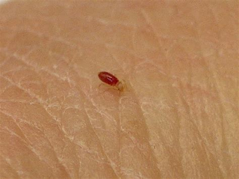 kill bed bugs yourself chepefema how to get rid of bed bugs yourself
