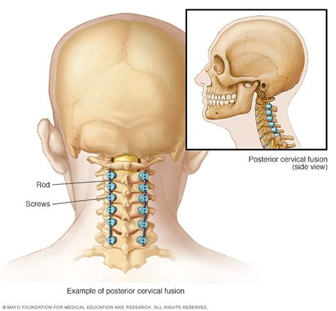 best spinal fusion surgeons spinal fusion about mayo clinic