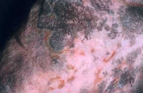 skin lesions on dogs diagnosis in dermatology