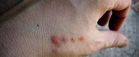 what to do if a bites you maggots in your wound could do miracles inbox email resource center