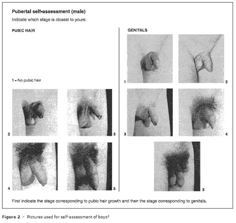 boy pubic hair jornal de pediatria comparison between objective
