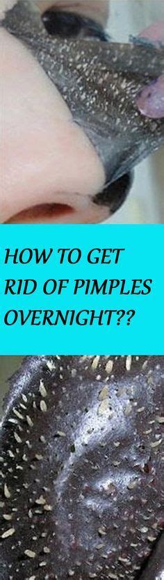 How To Get Rid Of Detox Acne Fast by 1000 Ideas About Overnight Pimple Remedies On