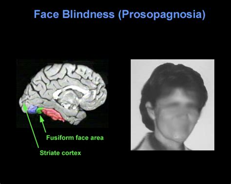 Brain Blindness Brainmind Com