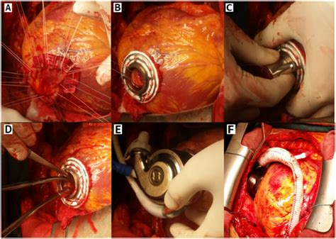 Surgical Treatment of Advanced Heart Failure- Left ... Lvad Clinic