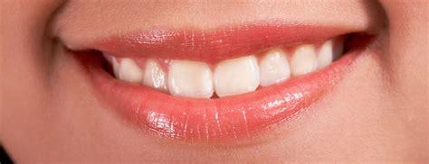 teeth whitening vancouver   whiten teeth  home