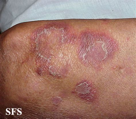 pustules pestilence and tudor treatments and ailments of henry viii books psoriasis skin disease explained pictures and different
