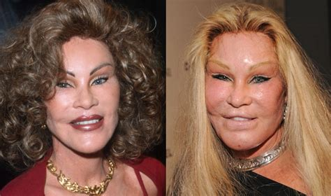 worst celeb plastic surgery 10 worst celebrity plastic surgery cases of all time