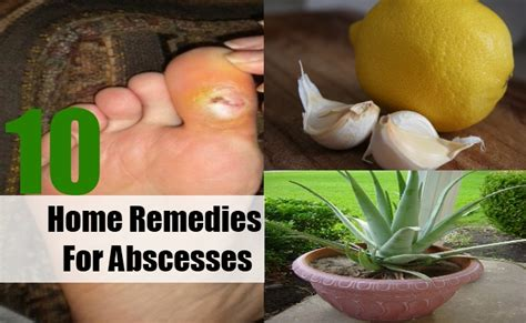 10 different home remedies for abscesses search home remedy