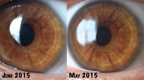 Iridology Detox by 22 Photos Iridology Before And After Iriscope