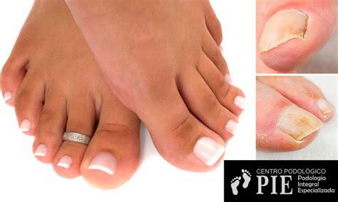 fotos de uñas acrilicas lo mas nuevo s 49 por u 209 as acrilicas antimicoticas para pies cuponidad