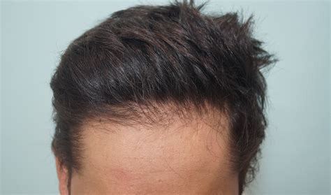 hair transplant stories and patient testimonials 1300 grafts bio fue ht surgery result after 1 year