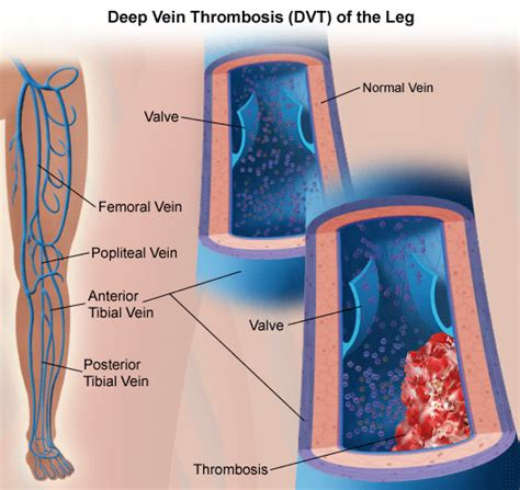 Symptoms Of Blood Clot After C Section by Pulmonary Embolism Causes Stanford Health Care