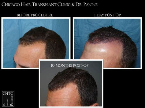 hair transplant month by month pictures dr panine chicago hair transplant clinic 2 375 grafts