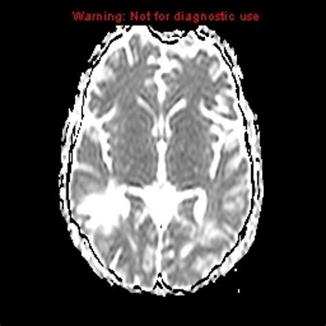 Copy Mri The Central Nervous System central nervous system vasculitis radiology radiopaedia org