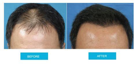 hair transplant cost melbourne fut hair transplant melbourne dr jassim daood