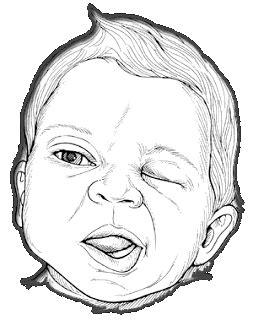 JΣFFΣЯƧӨП: Paralisia Facial