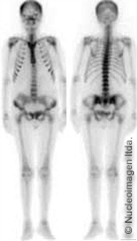 Información para Médicos -Gamagrafía ósea NORMAL-