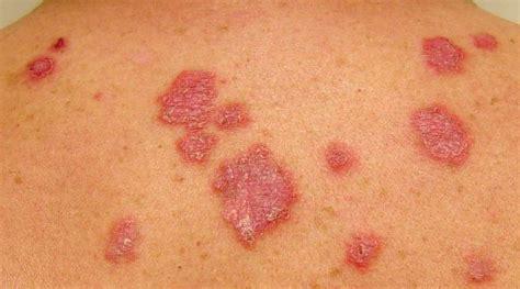 dermatite atopica bambini alimentazione dermatite atopica alimentazione 28 images dermatite