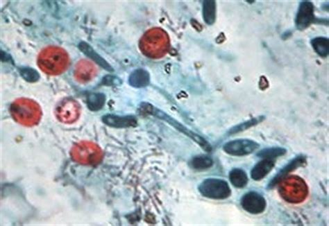 fecal smear causes symptoms treatment fecal smear