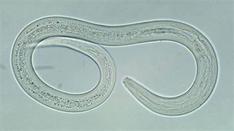 hookworms in hookworm infections causes symptoms and treatments