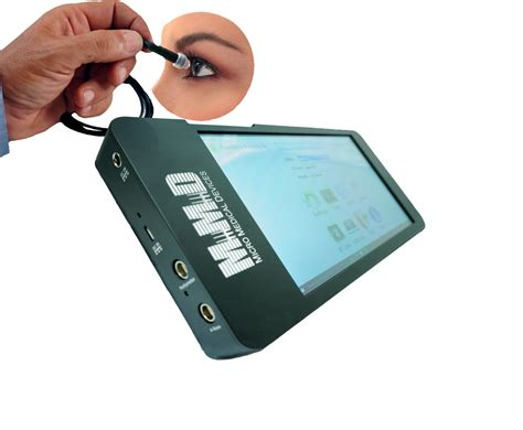 mobile usb ophthalmic b scan mobile usb ophthalmic device
