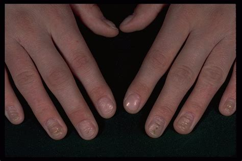 Eczema On Nails Pictures