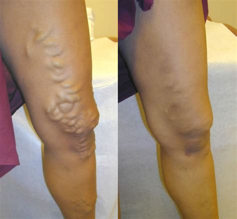 spider veins on the legs treatments sclerotherapy varicose vein spider vein melbourne