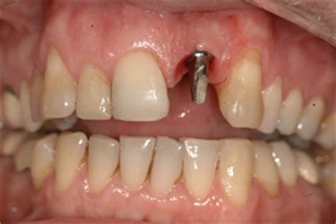 4 missing front teeth implants immediate dental implants for tooth replacement
