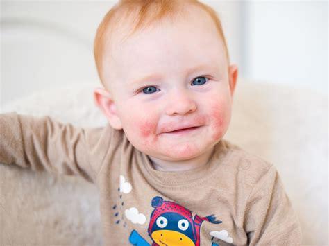 dermatite atopica bambini alimentazione dermatite atopica eczema amico pediatra