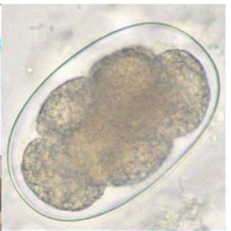 Hookworm Eggs In Stool by Ancylostoma Duodenale Necator Americanus Human Specific
