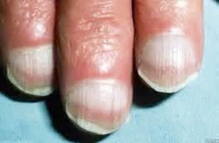 nail alert singapore magazine health