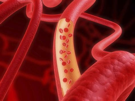 Iron In Blood excess iron in blood causes symptoms treatment risk