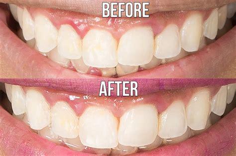 teeth whitener  celebrity   instagram